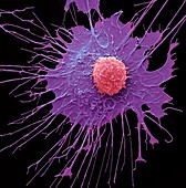 CAR T-cell therapy,SEM