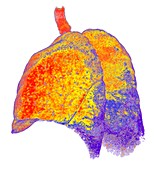 Interstitial lung disease,3D CT scan