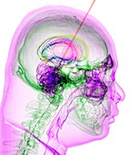 Deep brain stimulation,3D CT-based image