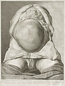 William Hunter on the anatomy of human pregnancy, 1774