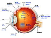 Eye diseases in slit lamp examination, illustration
