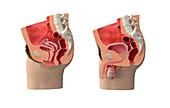 Female and male pelvic organs, illustration