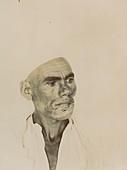 Facial disfigurement, historical image