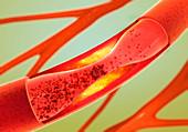 Atherosclerosis, illustration