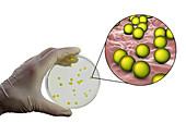 Micrococcus luteus bacteria, composite image