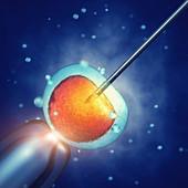 In vitro fertilisation, illustration
