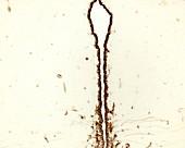 Ependymal cells, light micrograph