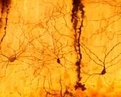 Stellate cells, light micrograph