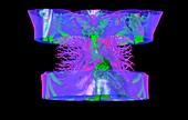 Aortic aneurysms, 3D CT scan