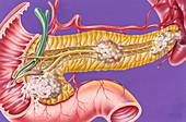 Pancreatic cancers, illustration