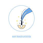 Hair transplant procedure, illustration