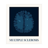 Brain affected by multiple sclerosis, illustration