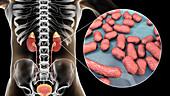 Acute pyelonephritis caused by Acinetobacter bacteria, illus