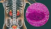 Acute pyelonephritis, illustration and light micrograph