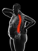 Obese man's painful back, illustration