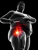 Obese man's painful hip joint, illustration