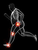 Obese runner's painful joints, illustration