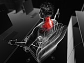 Muscle pain, illustration
