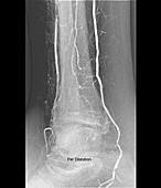 Narrowed leg artery treatment, X-ray