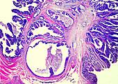 Colon cancer, light micrograph