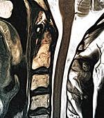Healthy spine, MRI scan