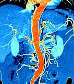 Abdominal aortic aneurysm, CT scan