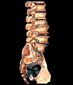 Arthritic spine, 3D CT scan