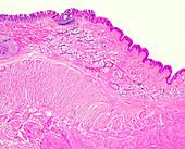 Human oesophagus, light micrograph