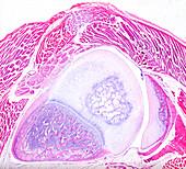 Human joint, light micrograph