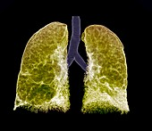 Emphysema, CT scan