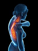 Woman with backache, illustration