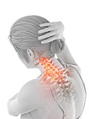 Woman with a painful neck, illustration
