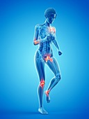 Woman with painful joints while walking, illustration