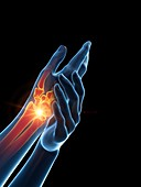 Woman with a painful hand, illustration