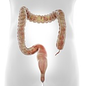 Human colon, illustration