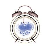 Alarm clock, X-ray