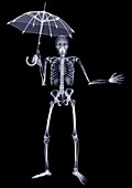 Skeleton holding an open umbrella above him, X-ray