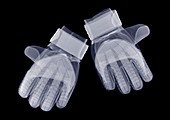 Pair of gloves, X-ray