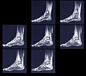 Scans of feet and ankles side, MRI