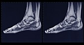 Foot and ankle, MRI