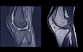 Knee joints side view, MRI