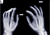 Hands slightly arched, X-ray