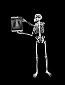 Skeleton looking at x-ray film, X-ray