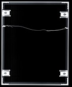 Picture frame, X-ray
