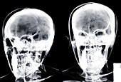 Two human skulls, X-ray