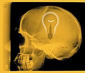 Human skull with light bulb, X-ray