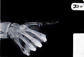 Human hand with thumb pointing, X-ray