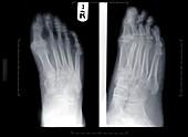Human feet, X-ray