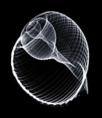 Periwinkle shell, X-ray