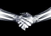 Handshake, X-ray